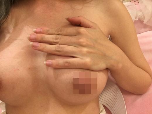 台北水滴型隆乳