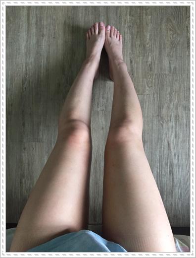 台北自體隆乳