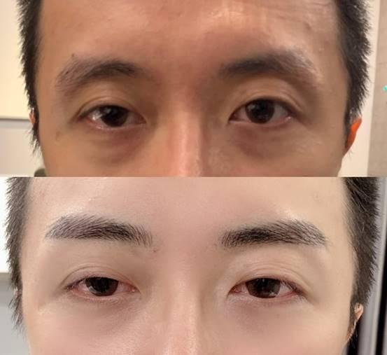 台中男生繡眉