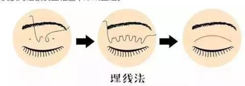 台中縫眼皮推薦