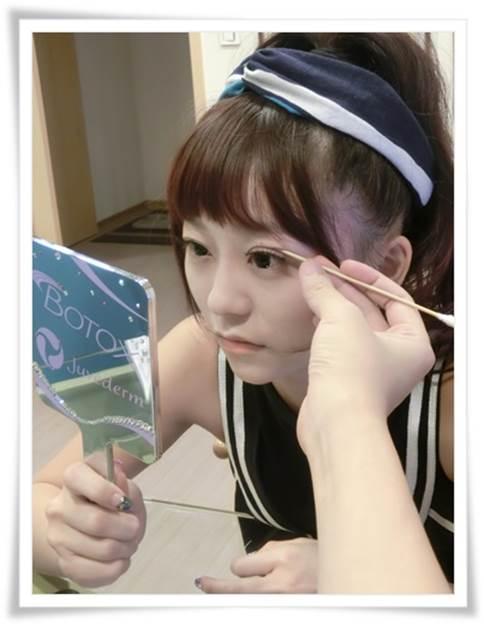 台北縫雙眼皮推薦