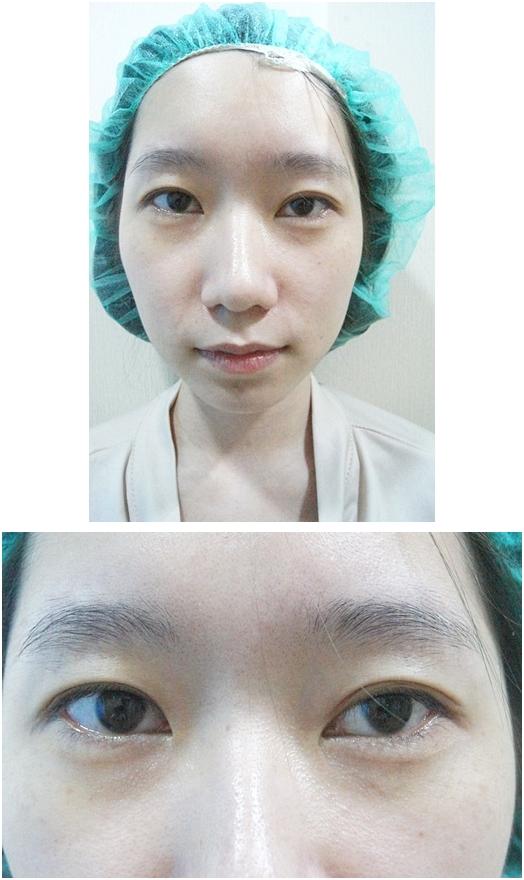 台北韓系割訂書針雙眼皮推薦
