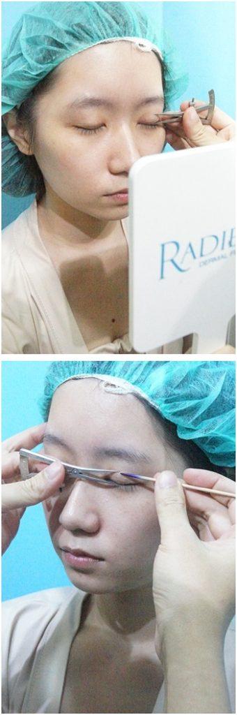 台北韓系割訂書針雙眼皮推薦醫師