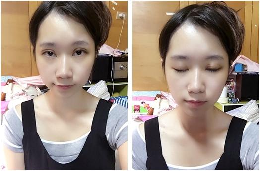 台北自然割雙眼皮診所