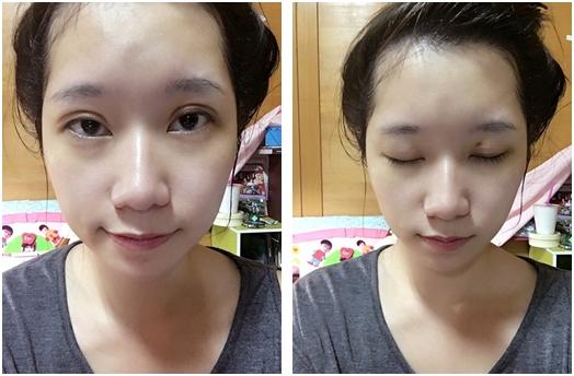 台北自然割雙眼皮診所評價