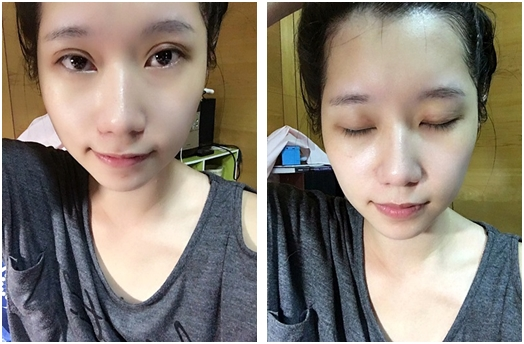 台北自然割泡泡眼雙眼皮診所評價