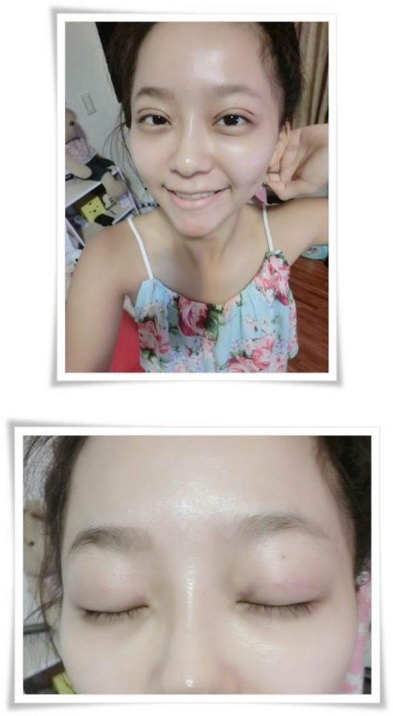 台北縫訂書針雙眼皮推薦醫師