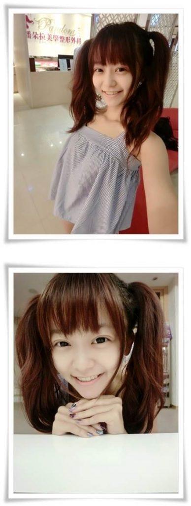 台北縫單眼皮雙眼皮推薦醫師