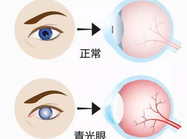 高雄眼科醫師推薦